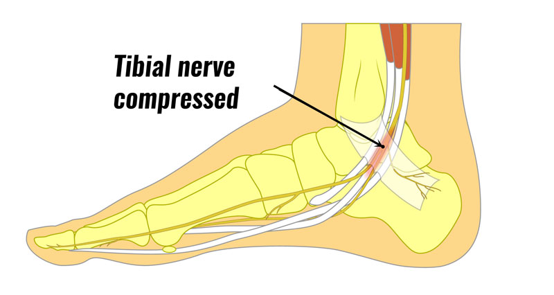 Tarsal tunnel nerce compression