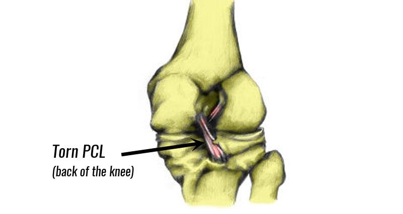 Posterior Cruciate Ligament Injury Torn Pcl Symptoms