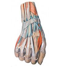 Wrist Tendonitis