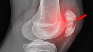 Acute patellla injury