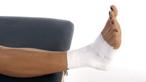 Ankle strapping and taping