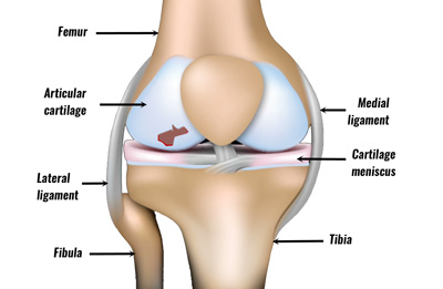 b4c2fcb61d Damage can occur to the articular cartilage on its own as an isolated  condition, or in conjunction with other knee injuries.