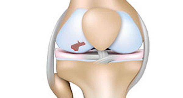 Articular knee cartilage