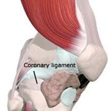 Coronary Ligament Sprain