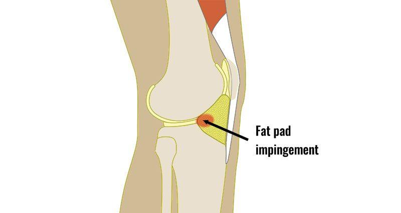 Fat pad impingement knee