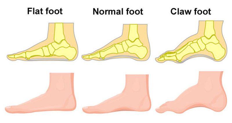 Flat feet & Claw foot