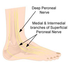 Peroneal Nerve Contusion - Symptoms, Causes, Treatment