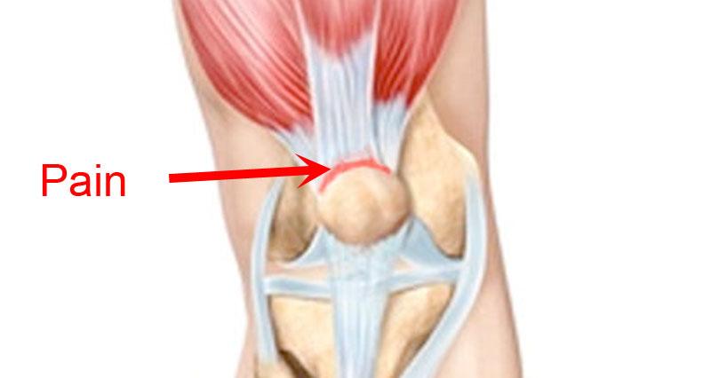 Quadriceps tendinopathy