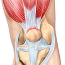 Quadriceps tendonitis - Quadriceps tendinopathy