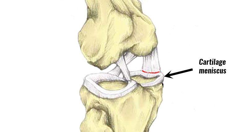 Torn cartilage meniscus