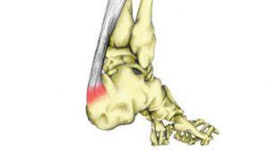 Insertional achilles tendonitis / Sever's disease