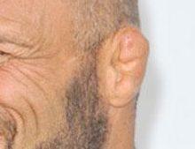Ear Pain & Ear Injuries