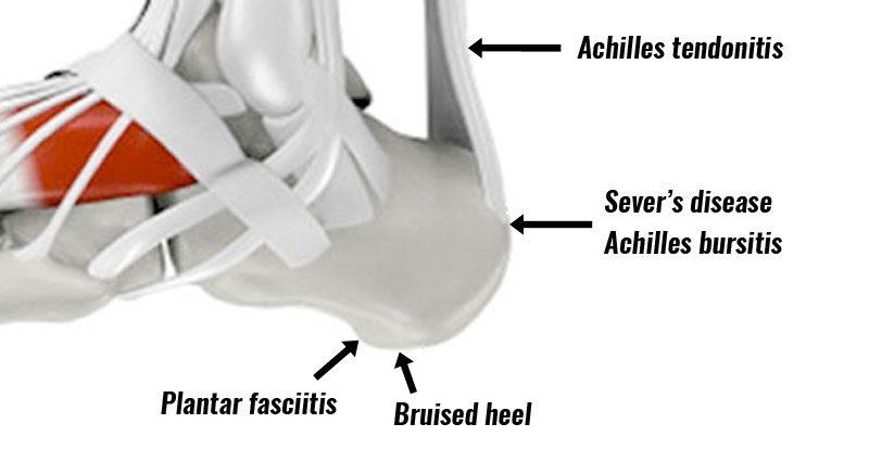 Heel Pain - Causes, Symptoms, Diagnosis & Treatment