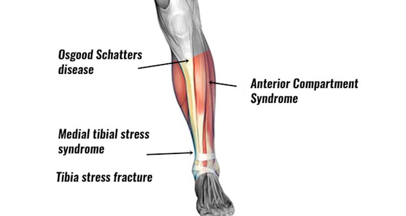 Shin Pain Symptoms Causes Treatment Prevention