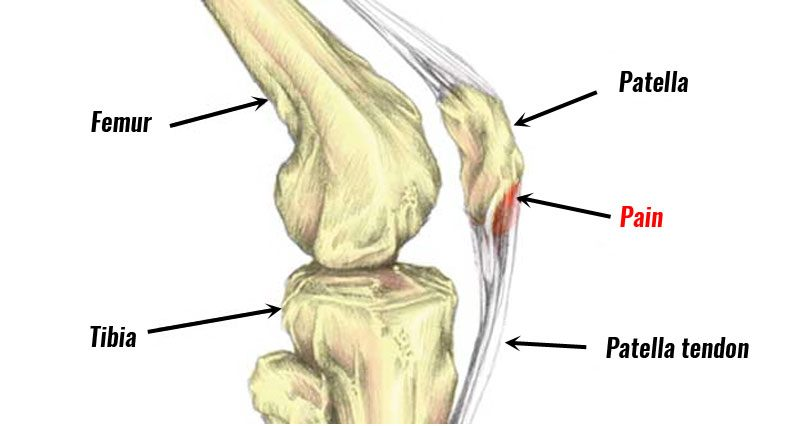 8d84575e2e Jumper's Knee | Patella Tendinopathy - Sportsinjuryclinic.net
