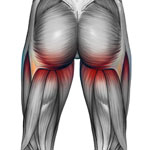 upper thigh/buttock pain