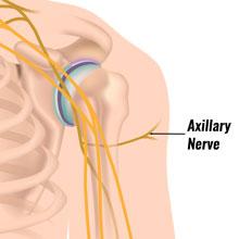 Axillary Nerve Injury