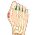 Bunion forefoot pain