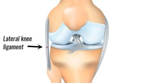 Lateral knee ligament sprain