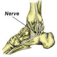 Atrapamiento del nervio calcaneal medial