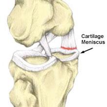 Medial Meniscus Tear knee pain