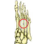 metatarsal fracture - forefoot pain