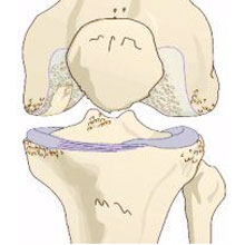 Osteoarthritis - lateral Knee pain
