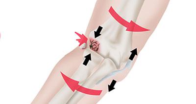Osteochonritis dissecans elbow