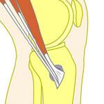 Pes anserine bursitis - medial knee pain