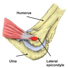 Tennis Elbow - lateral elbow pain