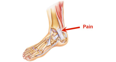 Tibialis posterior medial ankle pain