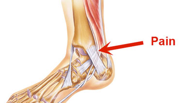 Tibialis posterior tendonitis - medial ankle pain