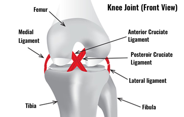 Torn lateral collateral knee ligament