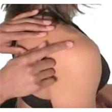 Ubicación del dolor del esguince articular de AC
