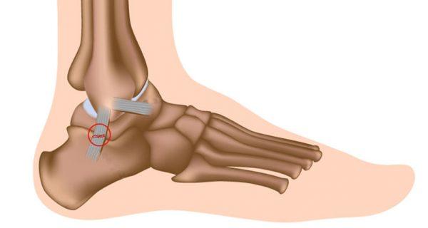 Ankle sprain - Sprained ankle