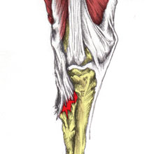 Posterior knee pain - hamstring tendon strain