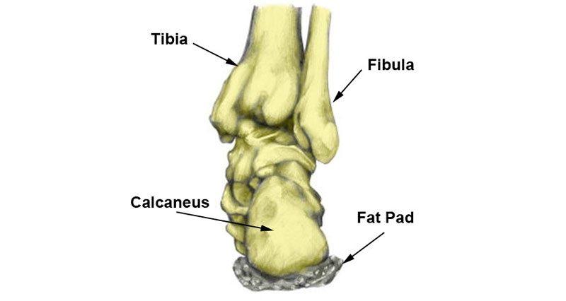 Bruised heel
