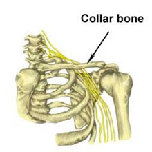 Clavicle Fracture - acute shoulder injuries