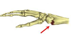 Broken wrist Colles fracture