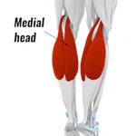 gastrocnemius tendinopathy