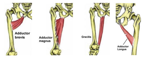Groin muscles - groin strain