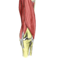 Hamstring tendon strain - posterior knee pain