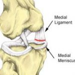 Medial knee ligament sprain