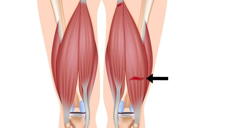 Pulled Hamstring strain