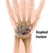 Scaphoid Fracture - acute wrist pain