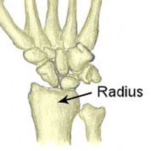 Smiths Fracture