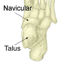 Talar Stress Fracture outside ankle pain