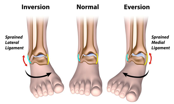 Types of ankle sprain - inversion and eversion