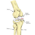 unhappy triad of the knee