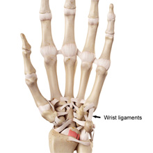 acute wrist pain - sprains and strains